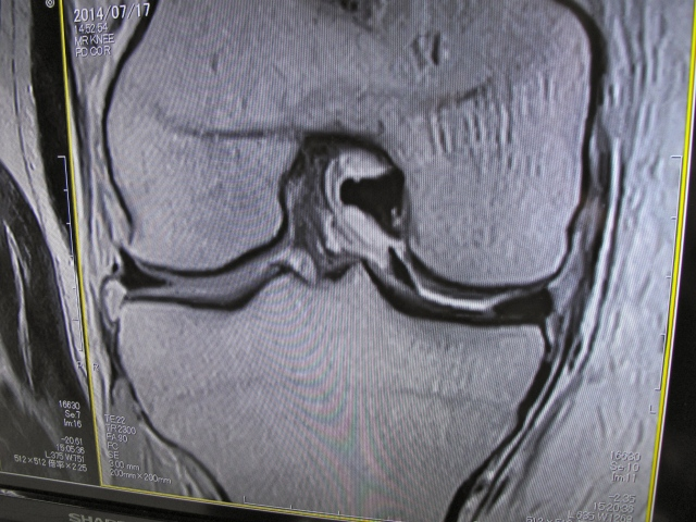 OK, this is a slice across my knee. in the gap between the two bones, on the right hand side, you can see two black areas. essentially they should be one such as you see on the left hand side of the gap. This indicates a bucket handle tear to the meniscus.